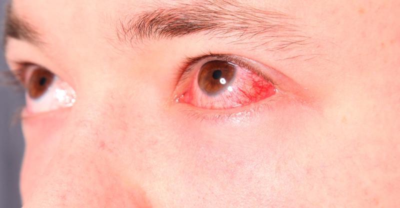 Doença confundida com conjuntivite pode até cegar