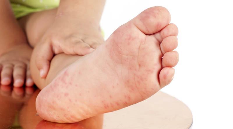 Doenças de pele no verão: você sabe quais são e como se proteger?